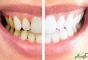 خوردن این مواد غذایی باعث ایجاد جرم روی دندان میشود