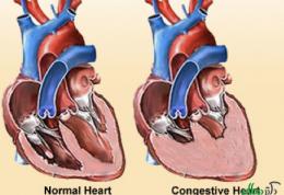 نارسایی احتقانی قلبی و نکات تغذیه ای مربوط به آن قسمت اول