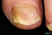 شناخت و درمان انواع عفونت های پوستی
