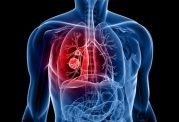 با این 7 روش سلامت ریه های خود را تضمین کنید