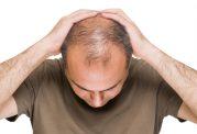 دلایل اصلی ریزش مو