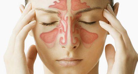 موثر ترین روش برای درمان سینوزیت