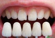 عمر مفید روکش های دندان چند سال است؟