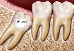 مخاطرات دندان عقل