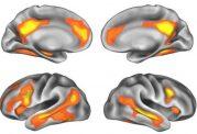 عوامل تاثیرگذار بر مغز زنان