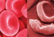 دانستنی هایی پیرامون اندازه گلبول های قرمز
