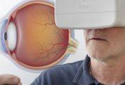 سوال های رایج درباره فشار چشم