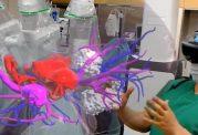 کاربرد هولولنز مایکروسافت در عمل جراحی پروستات
