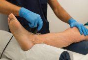 بهبود گردش خون در پا با این موارد