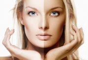 آیا برنزه کردن پوست سرطان زاست؟
