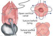 توضیحات پزشکی در مورد عمل سرکلاژ