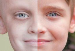 کاهش 63 درصدی مرگ با سرطان