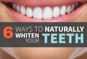 راهکارهای خانگی برای سفیدتر شدن دندان