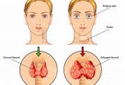اختلالات تیروئیدی و امراض پوستی