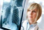 سه بیماری شایع در زنان را بشناسیم