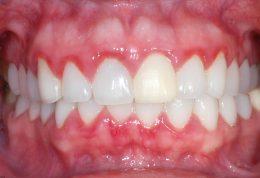 خونریزی لثه هنگام مسواک زدن به چه دلیلی اتفاق می افتد