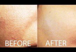 پیشگیری از ایجاد منافذ پوستی