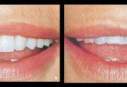 اطلاعات کاملی در مورد لامینیت دندان