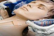 نخستین انسان منجمد شده با بدنی سالم