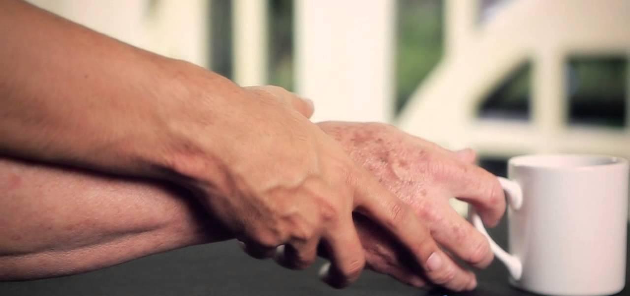 ورزش دارویی واقعی برای بیماری پارکینسون