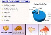 نگاهی به انواع سنگ کلیه ۱