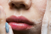 دانستنی هایی پیرامون پاکسازی پوست