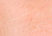 مقابله با نازک شدن موهای سر و بدن