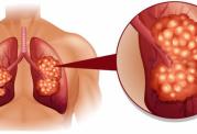 نشانه ها و روش های درمان آنفلوآنزا