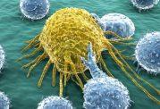آیا رادیوتراپی بعد از جراحی سرطان ضروری است؟