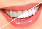 روشی خانگی برای سفید کردن دندان