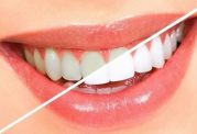 سفید کردن دندان ها با روغن نارگیل و جوش شیرین