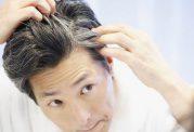 این 4 عامل باعث سفید شدن زودرس موها می شود