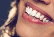 زیبایی دندان ها به چه قیمتی؟!