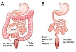 راهنمایی های پزشکی پس از جراحی روده