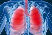 افراد سیگاری بیشتر از سایر افراد در معرض ذات الریه هستند