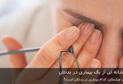 بیماری چشم نشانه ای از یک بیماری در بدنتان