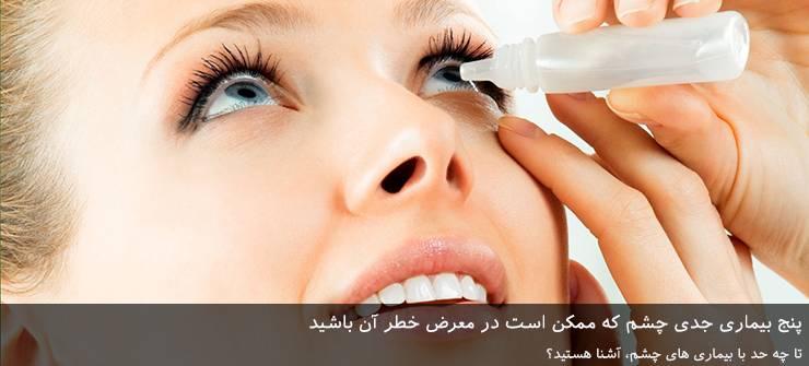 5 بیماری جدی چشم که ممکن است در معرض خطر آن باشید