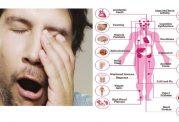 اختلالات ناشی از بیخوابی