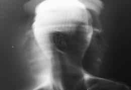 راهکاری جدید برای درمان روان پریشی به کمک گفتار درمانی