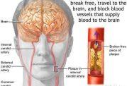 مقابله و پیشگیری از سکته مغزی
