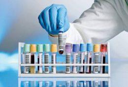 استفاده از آنتی بادی های اسب روشی جدید برای درمان ابولا