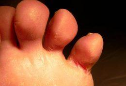 درمان عفونت قارچی پای ورزشکار
