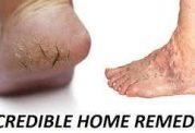 مقابله با ترک های رو پوست