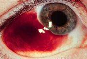 علل خونریزی ملتحمه چیست و راه های درمان آن کدامند؟
