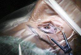آمادگی های مهم قبل از لیزیک چشم