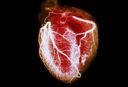 علل شیوع حمله قلبی در میان هنرمندان