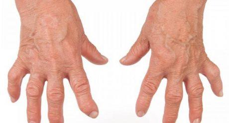 درمان علائم آرتریت روماتوئید با روشهای طبیعی