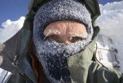 سرمازدگی با بدن چیکار میکند؟
