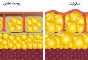شکل گرفتن سلولیت در بخش هایی خاص از بدن،چرا؟