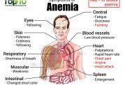 عوامل تاثیرگذار بر ایجاد کم خونی در بدن